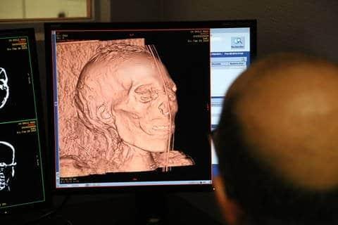 scanner momie